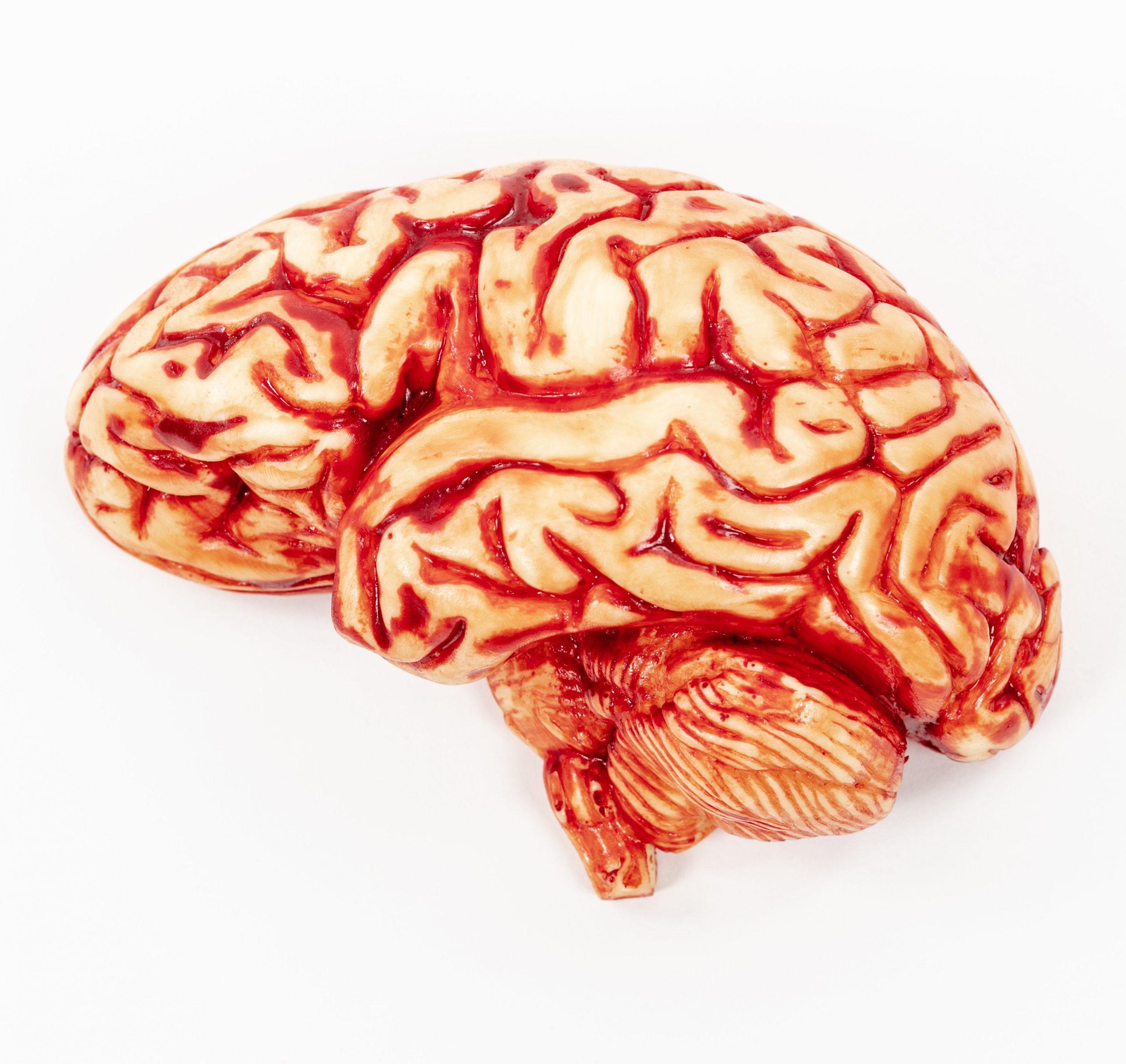 Chocolate Brain